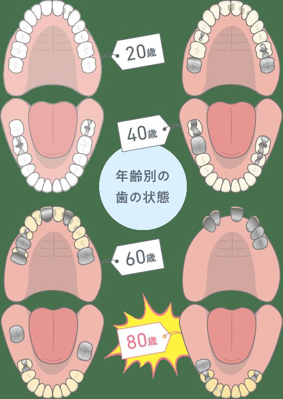 年齢別の歯の状態
